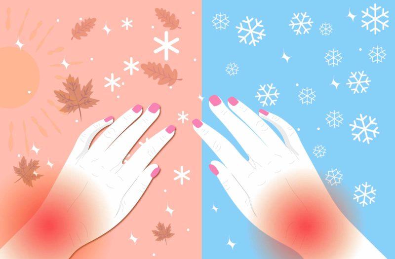 1218_Arthritis-Winter